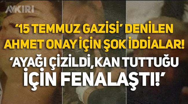 """15 Temmuz Gazisi denilen Ahmet Onay için şok iddialar: """"Ayağı çizildi, kan tuttuğu için fenalaştı!"""""""