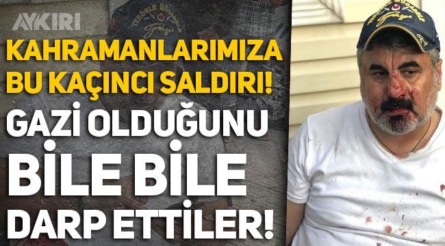 Ankara'da skandal olay! İsmet Gürdal'ın gazi olduğunu bile bile darp ettiler!