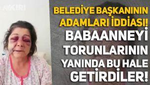Belediye Başkanının adamları iddiası: Giresun'da babaanneyi torunlarının yanında bu hale getirdiler!