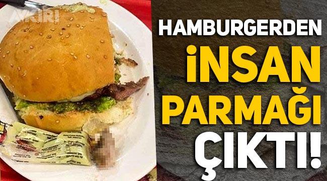 Akılalmaz olay: Hamburgerden insan parmağı çıktı