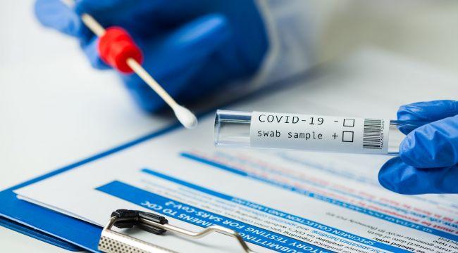 Kamu kuruluşlarına PCR testi zorunluluğu getirildi