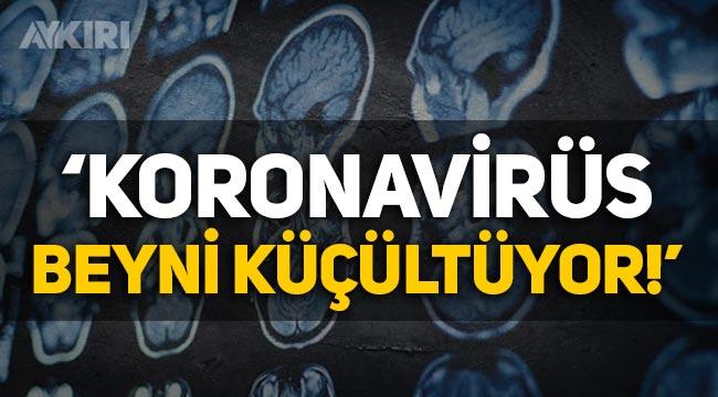 """Osman Müftüoğlu: """"Koronavirüs beyni küçültüyor!"""""""